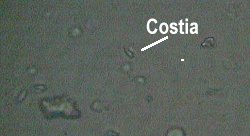 condyloma acuminata tünetei